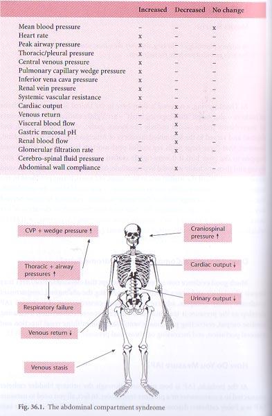 Abdominal Compartment Syndrome Pressure