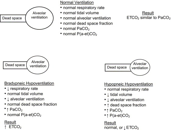 Intermittent apneic pauses interspersed with normal ventilation (periodic ...