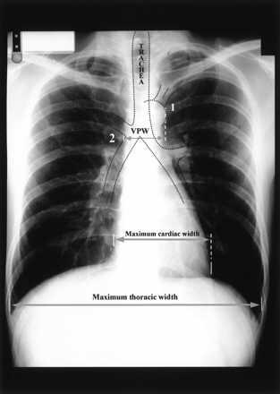 Heart Failure - Crashing Patient