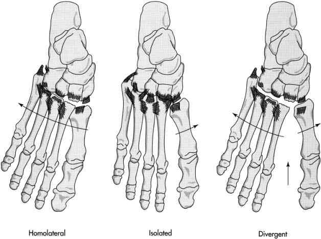 Types of Lisfranc's Injuries