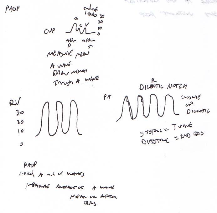 catheter pulmonary artery