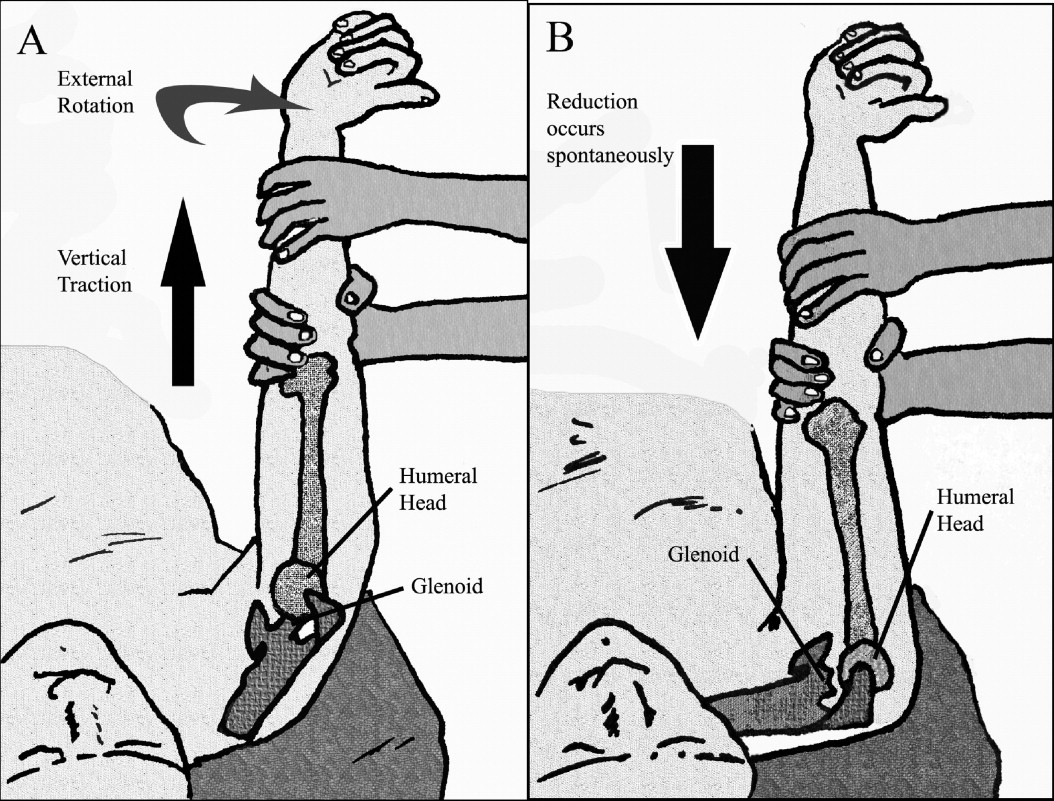 how to set a dislocated elbow