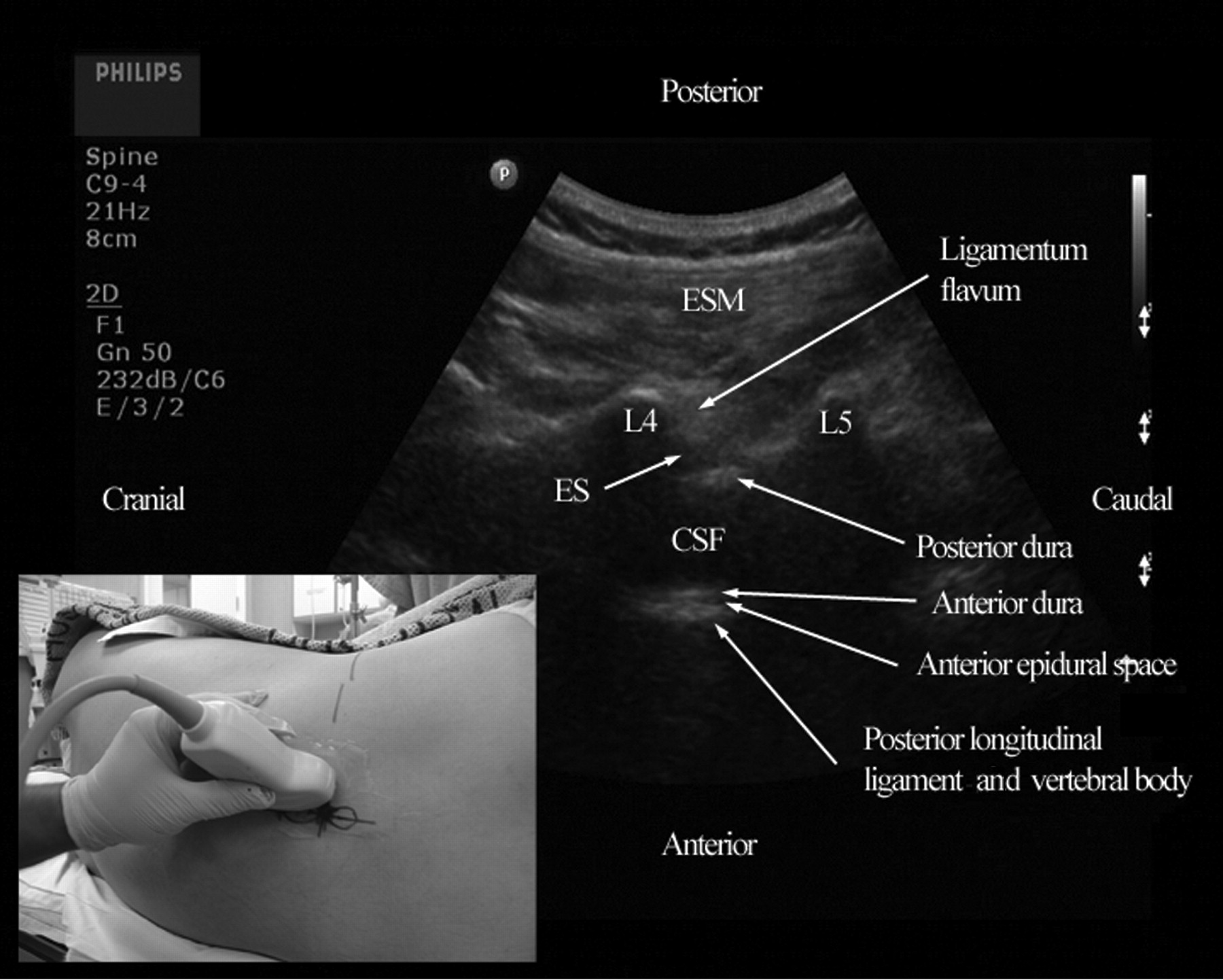 Lumbar Puncture - Crashing Patient