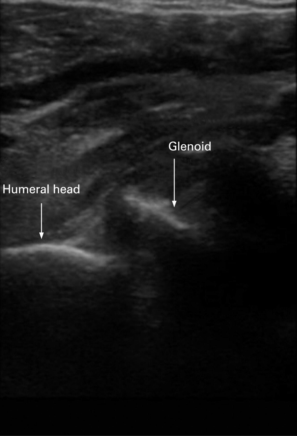 Ultrasound Photos Of Baby Girl: Shoulder Dislocation Ultrasound