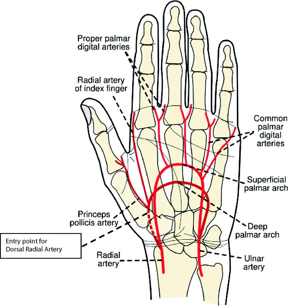 The Arterial Line : Arterial line imgkid the image kid has it