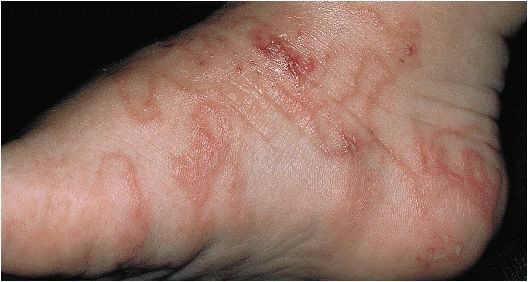 Dermatology and Rashes - Crashing Patient